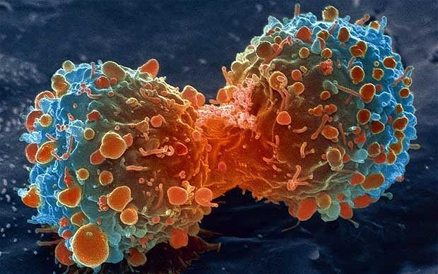 Puasa Bisa Jadi Obat Kanker